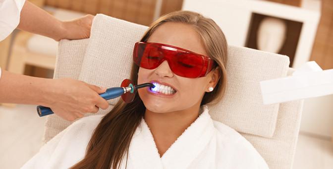 отбеливание зубов тюмень