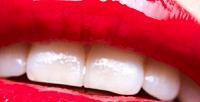 <b>Скидка до 75%.</b> Гигиена полости рта, лечение кариеса сустановкой пломбы, отбеливание, эстетическая реставрация зубов встоматологии «Зуб мудрости»