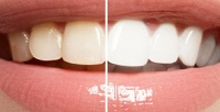 <b>Скидка до 55%.</b> Глубокое или экспресс-отбеливание зубной эмали потехнологии Magic White всалоне красоты Triangle