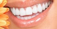 <b>Скидка до 53%.</b> Глубокое или экспресс-отбеливание зубной эмали потехнологии Insmile встудии красоты TeAmo