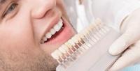 <b>Скидка до 50%.</b> Отбеливание зубов встудии красоты Volos_Volos