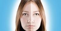 Различные виды чисток ипилингов навыбор в«Кабинете инновационной косметологии лица итела». <b>Скидкадо89%</b>