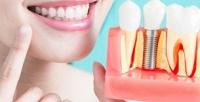 <b>Скидка до 62%.</b> Сертификат наимплантацию, протезирование илечение зубов вклинике «Дентал Приват»