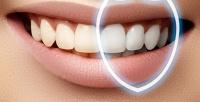 Лечение кариеса имногое другое встоматологической клинике «Королевство улыбок». <b>Скидкадо89%</b>