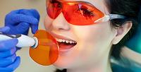 Чистка зубов ифотоотбеливание 20зубов в стоматологической клинике «АБВДент» (4920руб. вместо 16400руб.)
