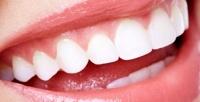 <b>Скидка до 77%.</b> Гигиена полости рта иотбеливание зубов потехнологии Amazing White Professional всемейной стоматологии «АРдента»