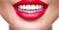 <b>Скидка до 57%.</b> Имплантация зубов посистеме «всё включено» скоронкой всети стоматологий Zubof.ru