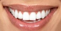 <b>Скидка до 52%.</b> Гигиена полости рта, УЗ-чистка иснятие зубных отложений щеткой спастой отстоматологии «Вита-стом»
