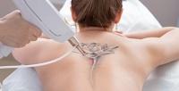<b>Скидка до 72%.</b> 1, 2или 3сеанса лазерного удаления татуажа бровей или татуировки вцентре эстетической иаппаратной косметологии «Косметология врачебная»