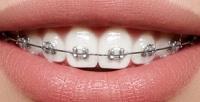 <b>Скидка до 72%.</b> Установка брекет-системы, чистка эмалевой поверхности, снятие слепков иснятие брекетов встоматологической клинике Domini Dent