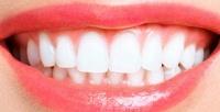 Ультразвуковая чистка зубов отсети стоматологических центров «Астраханская стоматология» (840руб. вместо 3000руб.)