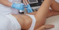 <b>Скидка до 84%.</b> Сеансы миостимуляции, RF-лифтинга, кавитации, лазерного липолиза или SPA-капсулы встудии красоты VI-SPA