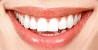 Лечение кариеса, установка пломбы идругие медицинские процедуры встоматологической клинике «Зубновъ». <b>Скидкадо85%</b>