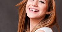 <b>Скидка до 59%.</b> Установка брекет-системы встоматологической клинике «Евродент»