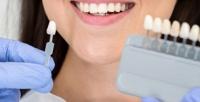 <b>Скидка до 56%.</b> Косметическое отбеливание зубов до12тонов отстудии «Арифметика тела»