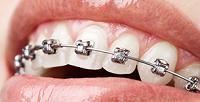 <b>Скидка до 73%.</b> Установка брекет-системы вклинике эстетической стоматологии «Центр инновационных технологий»
