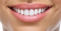 <b>Скидка до 84%.</b> Гигиена полости рта, лечение кариеса сустановкой пломбы или эстетическое восстановление передних зубов вклинике Smile Clinic