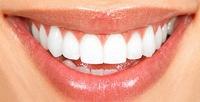 <b>Скидка до 80%.</b> Ультразвуковая чистка сфторированием иполировкой зубов для одного или двоих вмедицинском центре «Жемчужина»