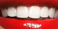 Профессиональная комплексная чистка зубов AirFlow встоматологической клинике «Ясень». <b>Скидкадо83%</b>