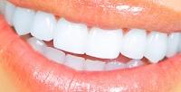 УЗ-чистка, лечение кариеса идругие медицинские процедуры внемецком центре стоматологии «Илита». <b>Скидкадо88%</b>