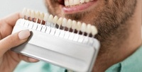 Косметическое отбеливание зубов всалоне Ultra White (1102руб. вместо 2450руб.)