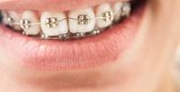 <b>Скидка до 50%.</b> Установка брекет-системы надве челюсти встоматологии «Аврора Dent»