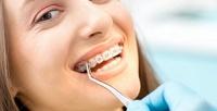 <b>Скидка до 52%.</b> Установка брекет-системы встоматологической клинике «СК-Клиник»