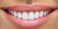 <b>Скидка до 67%.</b> Ультразвуковая чистка зубов сполировкой, шлифовкой, чистка зубов AirFlow отстоматологической клиники D.K.Stom