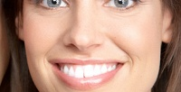 <b>Скидка до 55%.</b> Процедура отбеливания зубов навыбор отстудии «Улыбнись!»
