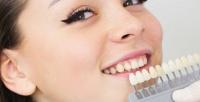 <b>Скидка до 55%.</b> Процедура отбеливания зубов отстудии «Улыбнись!»