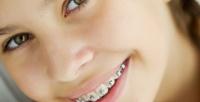 <b>Скидка до 81%.</b> Установка брекет-системы, чистка эмалевой поверхности, снятие слепков иснятие брекетов встоматологической клинике MGClinic