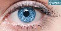 Лазерная коррекция зрения двух глаз методом Lasik от ведущего хирурга Городецкого Б.К в центре «Визион». <b>Скидка58%</b>