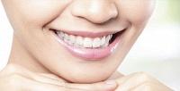 Гигиеническая чистка иотбеливание зубов вклинике «Галадент». <b>Скидка до83%</b>