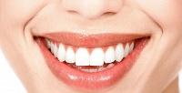 Ультразвуковая чистка зубов, лечение кариеса идругие услуги вклинике «Алибус Дент». <b>Скидкадо78%</b>