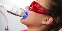 1, 2или 3сеанса отбеливания зубов методом Magic White встудии Smile Studio.<b> Скидкадо53%</b>