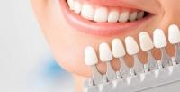 <b>Скидка до 54%.</b> Косметическое отбеливание зубов встудии отбеливания зубов White & Smile