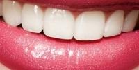 Процедура косметического экспресс-отбеливания зубов отстудии Magic White (750руб. вместо 1500руб.)