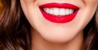 <b>Скидка до 88%.</b> Гигиена полости рта, лечение кариеса сустановкой пломбы встоматологической клинике «Ива-дент»