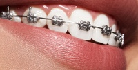 <b>Скидка до 52%.</b> Установка брекет-системы наодну или две челюсти встоматологической клинике «СК-Клиник»