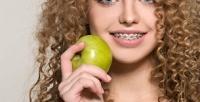 <b>Скидка до 50%.</b> Установка брекет-системы встоматологической клинике «Медиал»