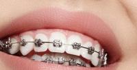 <b>Скидка до 67%.</b> Установка брекет-системы для детей ивзрослых встоматологической клинике Golden Dent Clinic