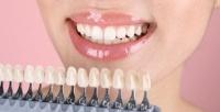 <b>Скидка до 63%.</b> Отбеливание зубов до18тонов встудии Adelina Studio