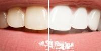 <b>Скидка до 70%.</b> Косметическое отбеливание зубов встудии красоты Amla