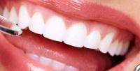 <b>Скидка до 86%.</b> Ультразвуковая чистка сглубоким фторированием или отбеливание зубов полинии улыбки встоматологии «Практик Дент»