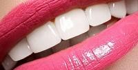 Косметическое отбеливание зубов всалоне Ultra White (1225руб. вместо 2450руб.)