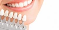 <b>Скидка до 54%.</b> Отбеливание зубов, реминерализация отстудии Star Smile