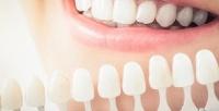 Отбеливание зубов встудии отбеливания зубов White Studio (1750руб. вместо 3500руб.)