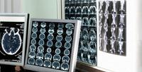 <b>Скидка до 48%.</b> МРТ-обследование или МР-ангиография органов исистем организма вцентре круглосуточной диагностики «МРТ24»