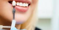 Профессиональное отбеливание зубов до12–15 тонов встоматологии ARK.Dent (3840руб. вместо 12000руб.)
