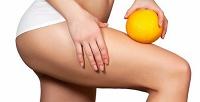 <b>Скидка до 82%.</b> Сеансы прессотерапии всего тела, ИК-штанов, миостимуляции, прогревания вкедровой бочке, антицеллюлитная программа отстудии красоты Body Well